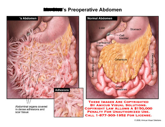 Intestines covered with dense adhesions, compared to normal anatomy.