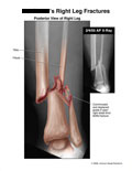 Comminuted and displaced distal tibia-fibula fracture.