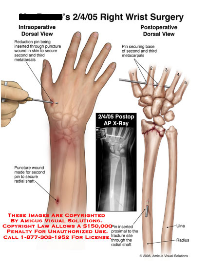 amicus,surgery,wrist,reduction,metatarsal,radius,fracture,pin,puncture,secure,dorsal