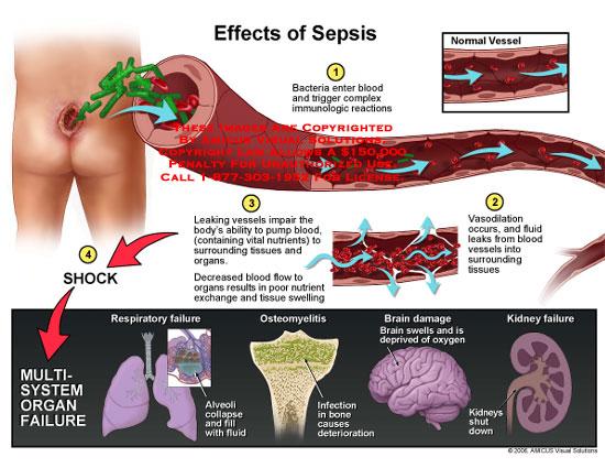 Bacteria entering blood, leaking vessels, and multi-organ failure.