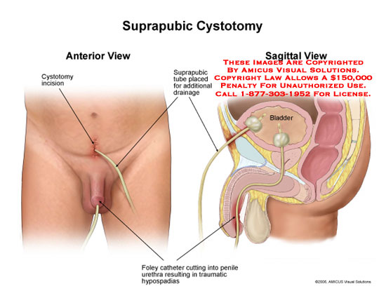 Medical diagrams and resources regarding Suprapubic tube placed to aid bladder drainage..