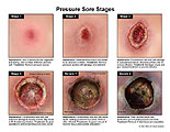 Appearance and treatment for stages 1-4 and severe cases.