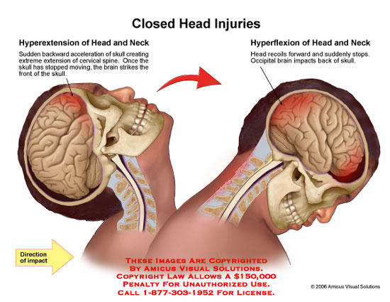 Medical diagrams and resources regarding Hyperextension and hyperflexion of neck with brain impacting skull..