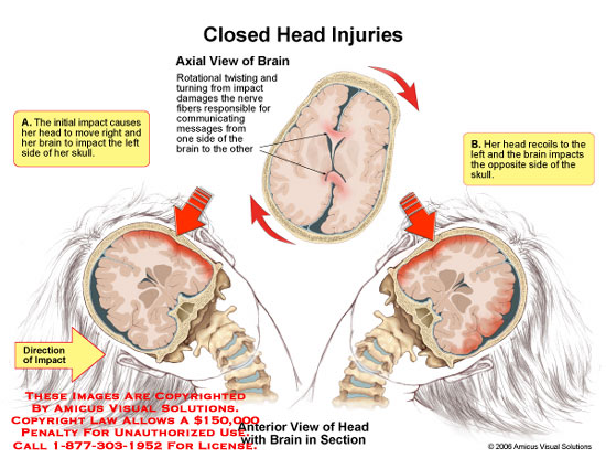 amicus,injury,closed,head,injuries,brain,skull,side,rotational,twisting,rollover,impact,recoil,damage