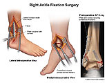 Illustration of amicus,surgery,ankle,fixation,fibula,plate,cancellous,screw,fracture,bimalleolar,x-ray,foot