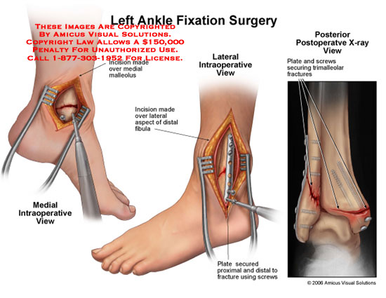 amicus,surgery,ankle,fixation,fibula,plate,cancellous,screw,fracture,trimalleolar,x-ray,foot