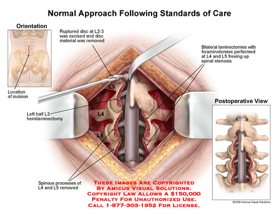 amicus,surgery,normal,approach,standards,spine,lumbar,care,disc,excised,removed,L2-3,bilateral,laminectomy,L4-5,discectomy