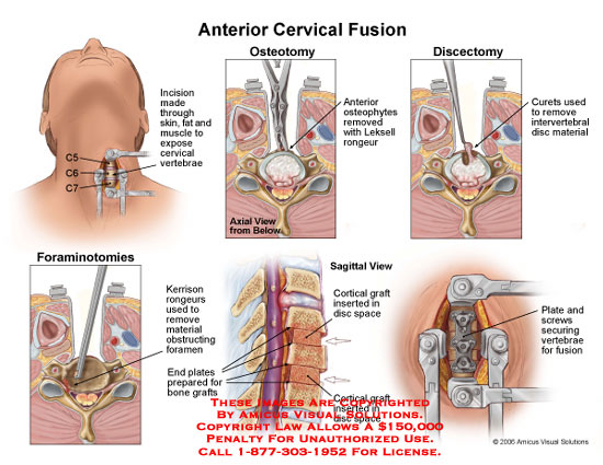amicus,surgery,anterior,cervical,fusion,C5-6,C6-7,osteotomy,discectomy,disc,foraminotomy,cortical,graft,plate,screw