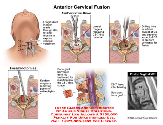 amicus,surgery,anterior,cervical,fusion,C6-7,disc,discectomy,drill,osteophyte,bone,graft,hip,fusion,fused,MRI