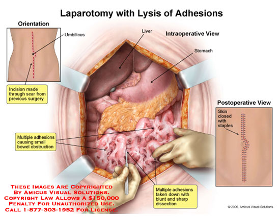 Medical diagrams and resources regarding Midline incision opened to expose adhesions and bowel obstruction..