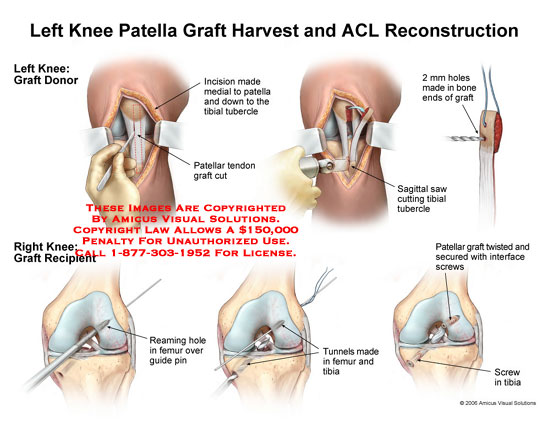 amicus,surgery,knee,patella,graft,harvest,ACL,cruciate,reconstruction,tendon,sagittal,saw,screw,tunnel,tibial,reaming,guide,pin,interface
