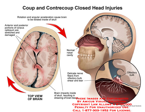 Medical diagrams and resources regarding Brain rotating in skull, with olfactory bulb injury..