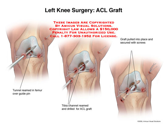ACL graft with tunnel reaming and securing screws.