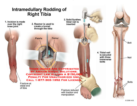 Reamer and tibial nail inserted into tibia across distal fracture.