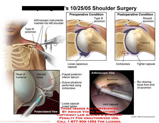 Arthroscopic acromion shaving and corkscrew suture plications.
