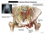 Pelvis and sacral nerves with sacral and pubic rami fractures.