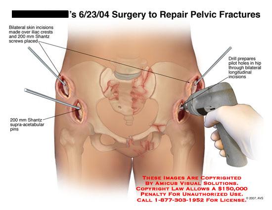 amicus,surgery,pelvic,fractures,pelvis,iliac,acetabular,screws,pins,schanz,shantz,drill,bilateral,fixation
