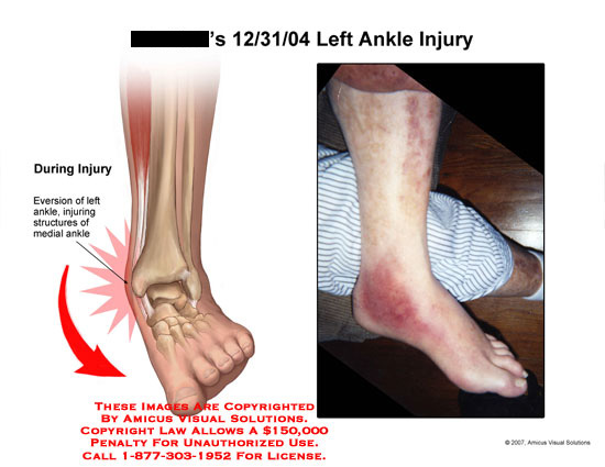 amicus,injury,ankle,medial,twisted,twist,eversion,foot,photo,bruise,swelling,swollen