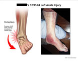 Eversion of ankle with photo of resulting injury.