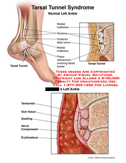 amicus,injury,ankle,tarsal,tunnel,tendons,tendonitis,nerves,retinaculum,syndrome,swollen