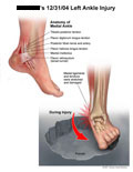 Anatomy of medial ankle and ankle bending inward causing injury.