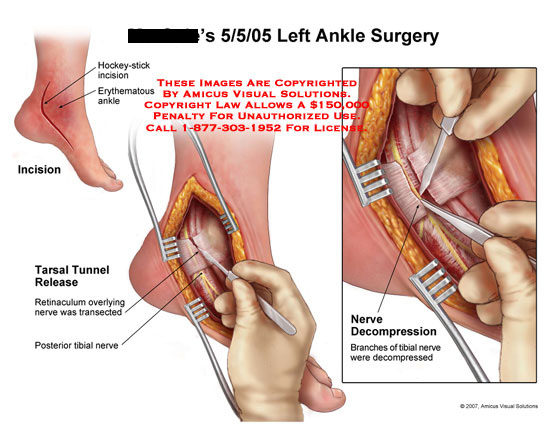 amicus,surgery,surgical,ankle,foot,medial,tarsal,tunnel,release,decompression,retinaculum,nerve,tibial