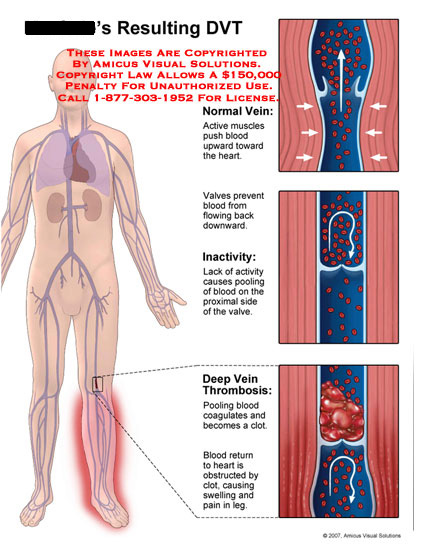amicus,injury,DVT,deep,vein,thrombosis,leg,blood,clot,inactivity,valve,swelling,pain