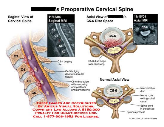 amicus,injury,cervical,neck,spine,C3-4,C4-5,C5-6,disc,bulge,fissure,narrowing,sagittal,axial,MRI,bulging