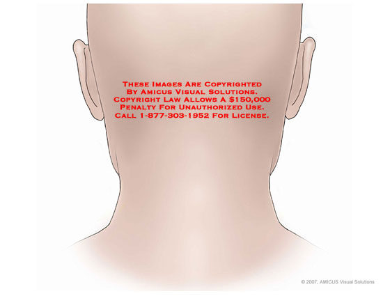 Skin surface of posterior neck.