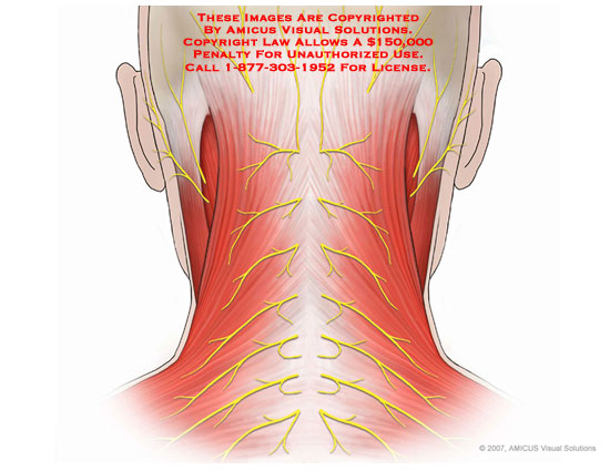 amicus,anatomy,cervical,neck,posterior,nerves,muscles,superficial,trapezius,splenius,capitis,greater,lesser,occipital,auricular,C2,C3,cutaneous,branches