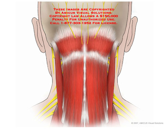 Shoulder Neck Muscles Muscles of Posterior Neck