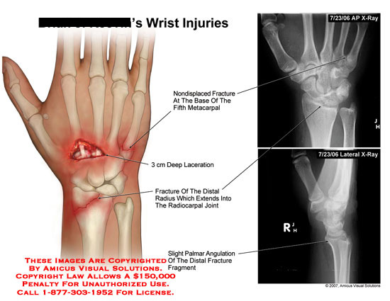 amicus,injury,fracture,5th,metacarpal,radius,laceration,angulation,hand,wrist