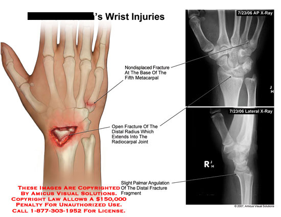 amicus,injury,fracture,5th,metacarpal,open,radius,laceration,angulation,hand,wrist