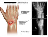 Fracture of 5th metcarpal with open fracture of radius.