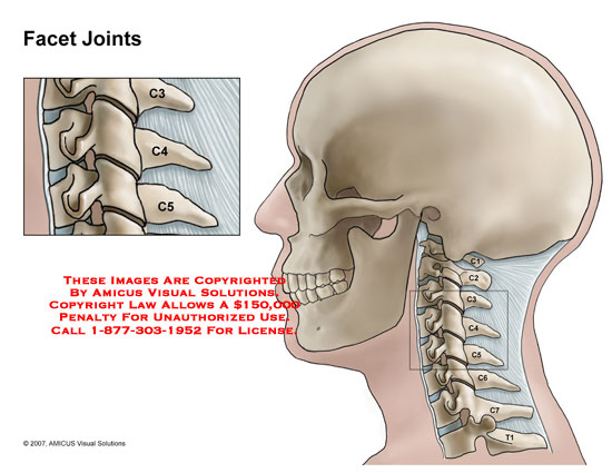 Medical diagrams and resources regarding Cervical spine with inset of C3-4 and C4-5 facet joints..