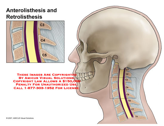 retrolisthesis and cause Looking for online definition of retrolisthesis in the medical dictionary retrolisthesis explanation free what is retrolisthesis.