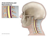 Illustration of amicus,anatomy,cervical,spine,anterolisthesis,retrolisthesis,C3-4,C4-5,lateral