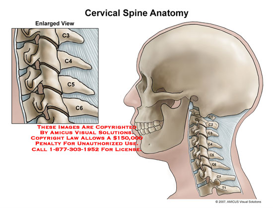 Lateral cervical spine with facet joints exposed.