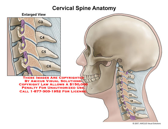 cervical retrolisthesis symptoms What is degenerative retrolisthesis: types, causes, symptoms, treatment disc slippage is more common in the cervical or symptoms of degenerative retrolisthesis.