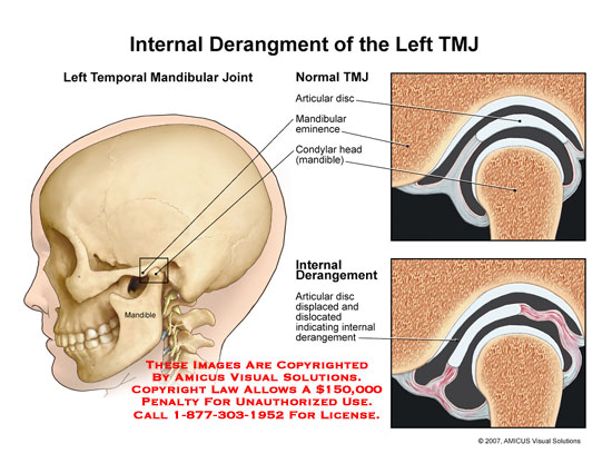 Medical diagrams and resources regarding Normal TMJ compared to TMJ with displaced articular disc..