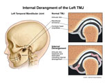 Normal TMJ compared to TMJ with displaced articular disc.