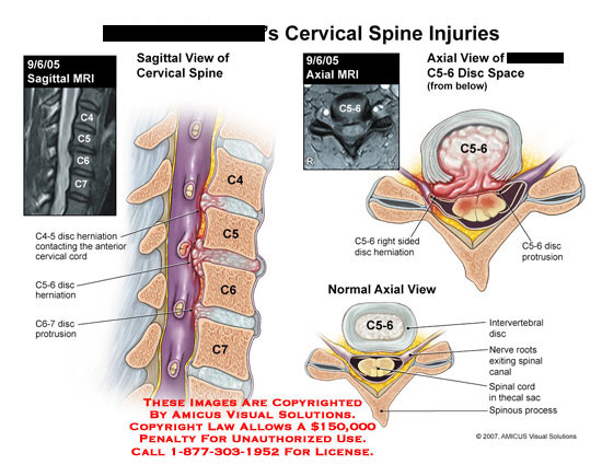 Lateral and axial views of C5-6 disc herniation.