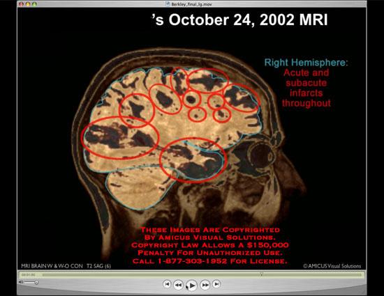 amicus,injury,brain,infarct,acute,subacute,MRI,osirix,rotating,animation
