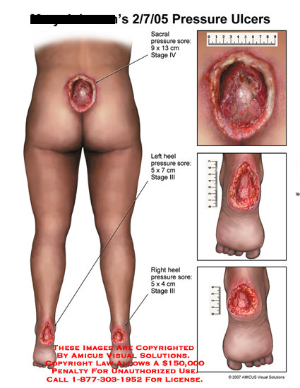 Stage 4 sacral ulcer and two stage 3 heel ulcers.