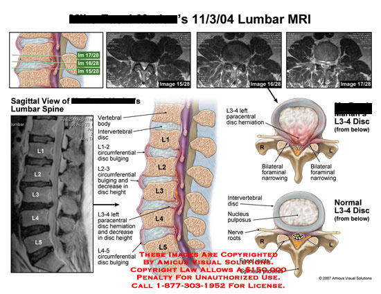 amicus,injury,lumbar,MRI,radiology,spine,disc,herniation,bulge,height,foraminal,normal,L3-4,narrowing