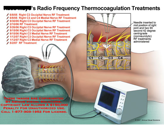 amicus,treatment,summary,radio,frequency,thermo,thermocoagulation,nerve,needle,RF,C3,occipital,device