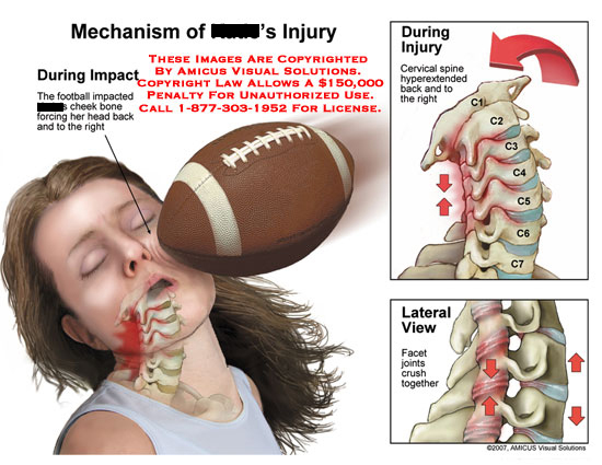 amicus,injury,football,impact,head,cheek,face,neck,hyperextension,hyperextended,cervical,crush,facet,joint