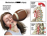 Football impacting head with insets of hyperextened neck.