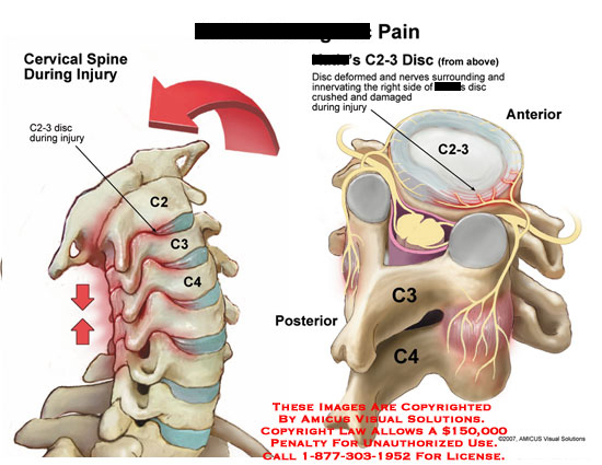 amicus,injury,discogenic,pain,hyperextesion,hyperextended,neck,cervical,disc,C2-3,crush,nerve,damage