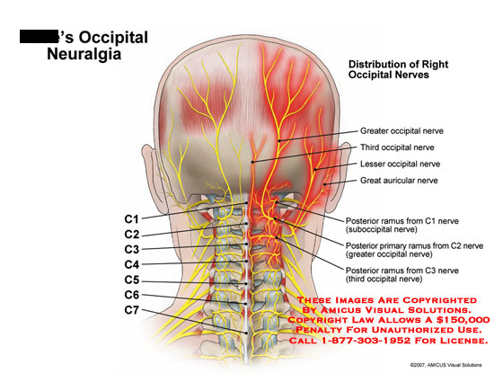 Medical diagrams and resources regarding Distribution of right occipital nerves..